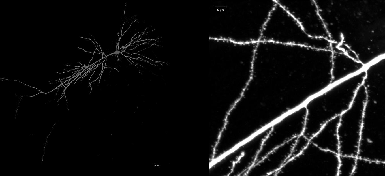学部時代、生理学研究所のインターンで染色した神経細胞